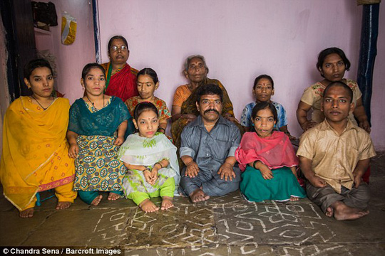 Gia đình Chauhan có đến 9 trên 11 người là người lùn.