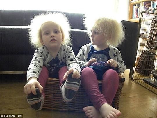 Hai cô bé song sinh bị hội chứng tóc xù - Ảnh 2.