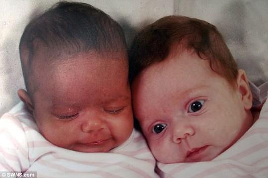 Hai cô bé song sinh thuộc dạng hiếm gặp trên thế giới - Ảnh 1.