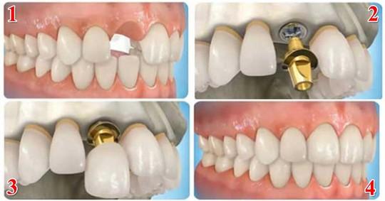 Tái tạo răng thật bằng công nghệ cắm ghép Implant - Ảnh 1.