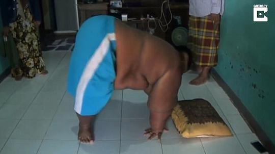 Bé trai 10 tuổi nặng 190kg vì nghiện nước ngọt và mì ăn liền - Ảnh 3.