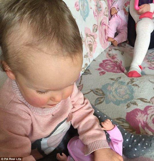 Cô bé mắc hội chứng nghiện rứt tóc của mình - Ảnh 3.
