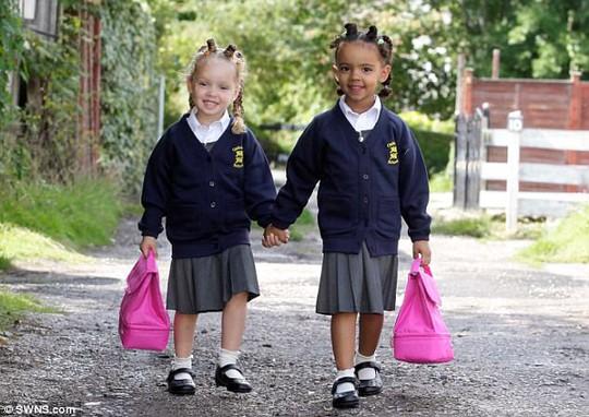 Hai cô bé song sinh thuộc dạng hiếm gặp trên thế giới - Ảnh 3.