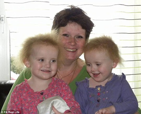 Hai cô bé song sinh bị hội chứng tóc xù - Ảnh 5.
