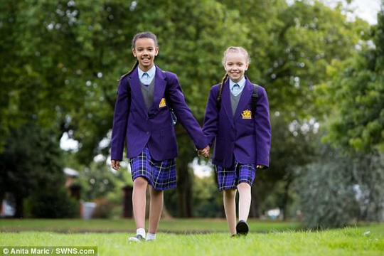 Hai cô bé song sinh thuộc dạng hiếm gặp trên thế giới - Ảnh 4.