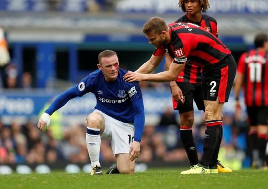 Dính chỏ đối thủ, Rooney mắt bê bết máu - Ảnh 3.