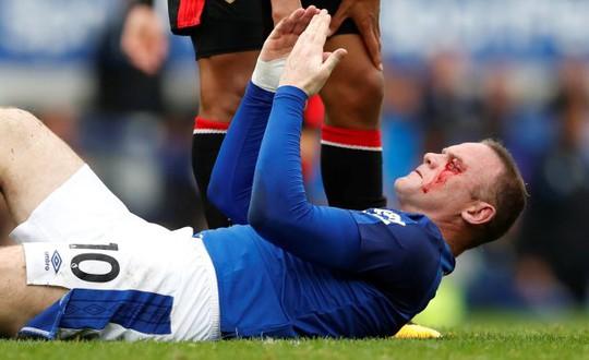 Dính chỏ đối thủ, Rooney mắt bê bết máu - Ảnh 1.