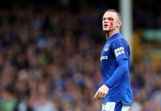 Dính chỏ đối thủ, Rooney mắt bê bết máu - Ảnh 5.