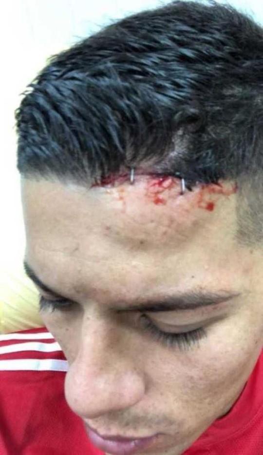 Rojo khoe chấn thương ghê rợn sau trận gặp Man City - Ảnh 1.