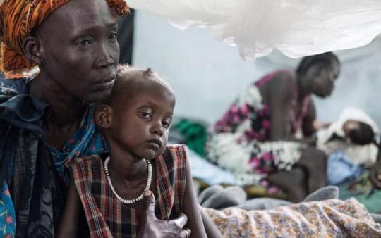 Cô Nyalok Mabor và con gái Dalia đang bị suy dinh dưỡng nghiêm trọng ở Nam Sudan Ảnh: TELEGRAPH