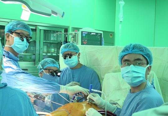 Kỹ thuật bắc cầu động mạch vành ít xâm lấn - Ảnh 1.