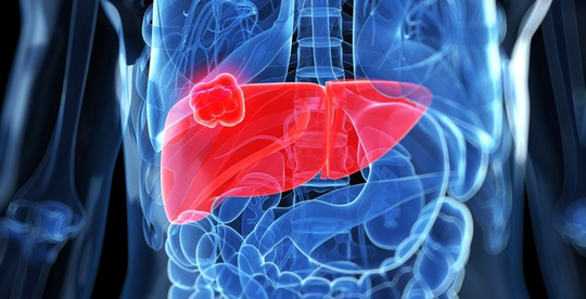 Chuyên gia BV Bạch Mai chỉ 4 nguyên nhân, 7 dấu hiệu ung thư gan - Ảnh 1.