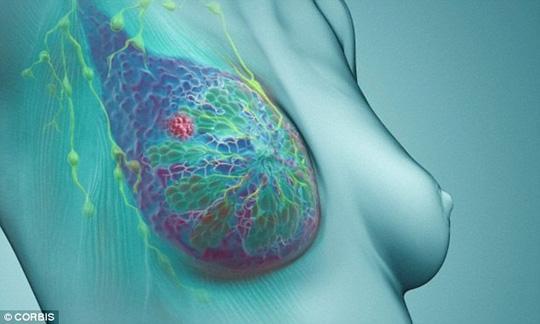 Ung thư vú có thể được phát hiện nếu chị em tự giác sờ nắn kiểm tra vùng núi đôi của mình. Ảnh: Dailymail.