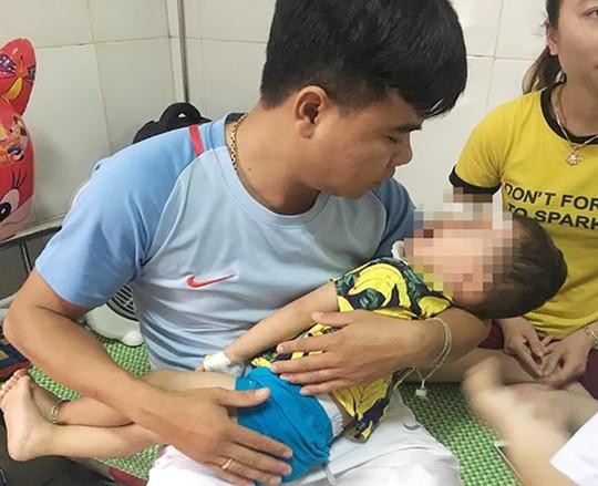 Bé trai 2 tuổi bị chó becgie nhà nuôi cắn rách mặt - Ảnh 1.