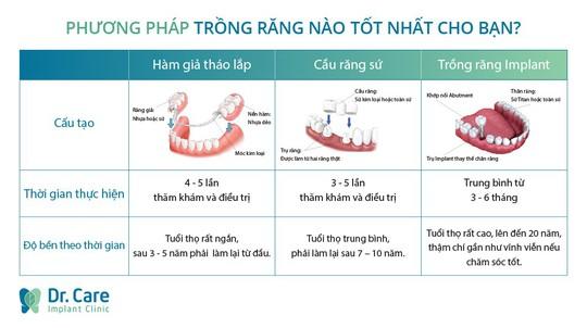 Ba lầm tưởng về phương pháp trồng răng Implant - Ảnh 1.