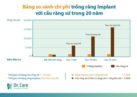 Ba lầm tưởng về phương pháp trồng răng Implant - Ảnh 2.
