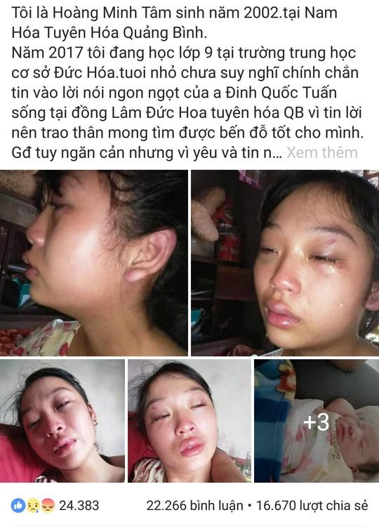 Mẹ trẻ 16 tuổi đăng Facebook cầu cứu vì bị chồng liên tục bạo hành - Ảnh 2.
