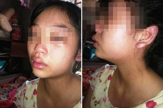 Mẹ trẻ 16 tuổi đăng Facebook cầu cứu vì bị chồng liên tục bạo hành - Ảnh 3.