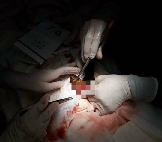 Thiếu nữ 14 tuổi tắc ruột sau khi ăn quá nhiều quả hồng ngâm - Ảnh 1.