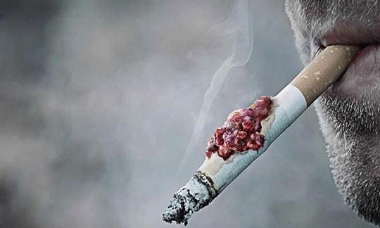 Nam thiếu niên 15 tuổi bị ung thư phổi nghi hút thuốc lá thụ động từ bố - Ảnh 2.