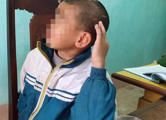 Trần tình của sư thầy bạo hành bé trai 10 tuổi thâm tím khắp người - Ảnh 3.