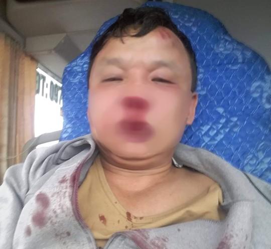 Sau tin nhắn của ông chủ, tài xế xe khách bị côn đồ chặn đánh bầm dập - Ảnh 1.