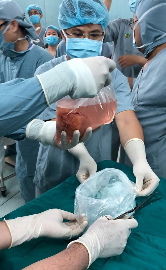 Mẹ quyết sinh con ra để lấy tạng cho người khác - Ảnh 1.