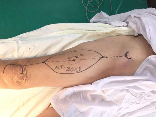 Cứu sống bệnh nhân nhiễm độc nặng sau 50 ngày bị rắn cắn - Ảnh 1.