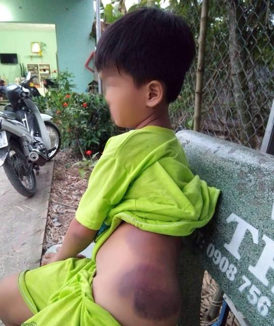 Học sinh tố bị cô giáo đánh bầm tím sườn, mông - Ảnh 1.