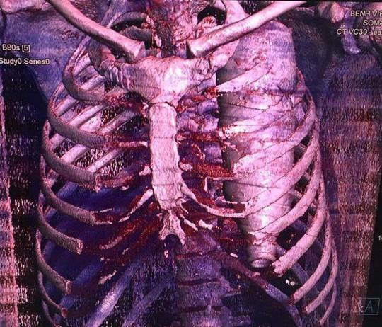 Những ca bệnh kỳ quặc đến bác sĩ cũng kinh ngạc bổ ngửa - Ảnh 1.