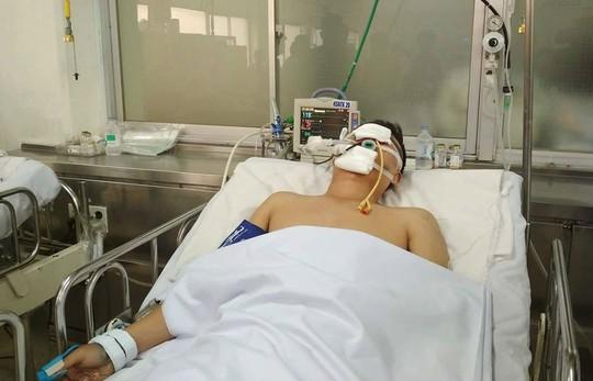 Một CSGT bị người vi phạm tông chấn thương sọ não - Ảnh 1.