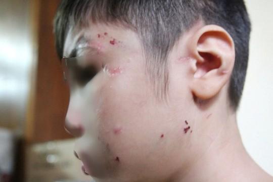 Cha bạo hành con ruột gây thương tích 22%, mẹ kế 3% - Ảnh 2.