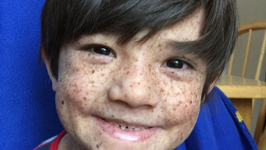 Bệnh lạ khiến cậu bé chỉ có thể sống về đêm - Ảnh 1.