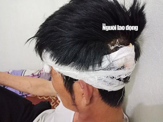Tài xế taxi Mai Linh bị đánh nhập viện lên tiếng - Ảnh 4.