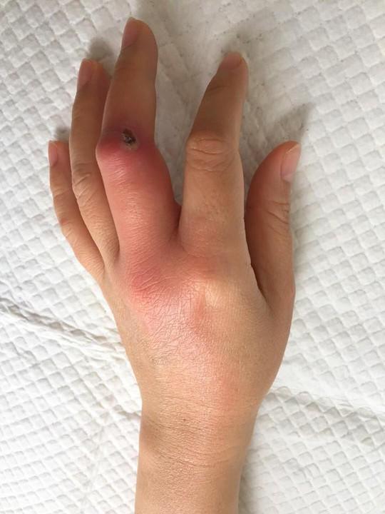 Chủ quan với vết xướt lúc làm bếp, nhiễm trùng cả bàn tay - Ảnh 1.