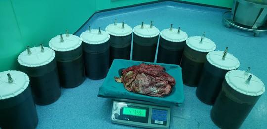 Ớn lạnh với 49 lít dịch rút ra từ bụng một phụ nữ - Ảnh 3.