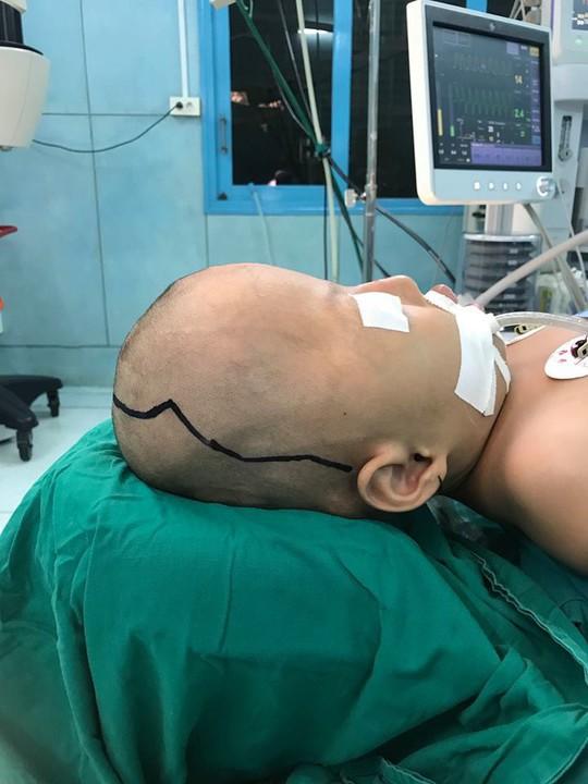 8 giờ cứu 2 bé dị dạng nặng đầu và mặt - ảnh 1