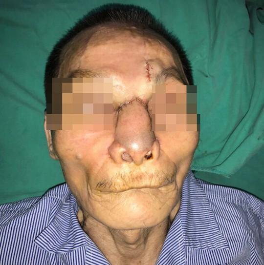 Một nam giới bị khoét sạch mũi, má vì ung thư da - Ảnh 2.