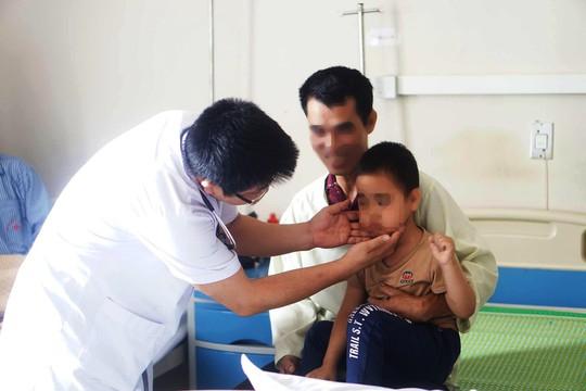 Bé trai 5 tuổi bỗng mọc lông rậm khắp mặt sau tiêm corticoid - Ảnh 1.