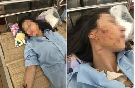 Khởi tố 3 phụ nữ đánh ghen lột đồ, đổ nước mắm, bột ớt lên nữ chủ tiệm spa - Ảnh 2.