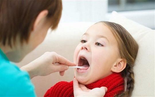 Cắt amidan: Tăng gấp 3 lần nguy cơ mắc cúm, suyễn, viêm phổi - Ảnh 1.