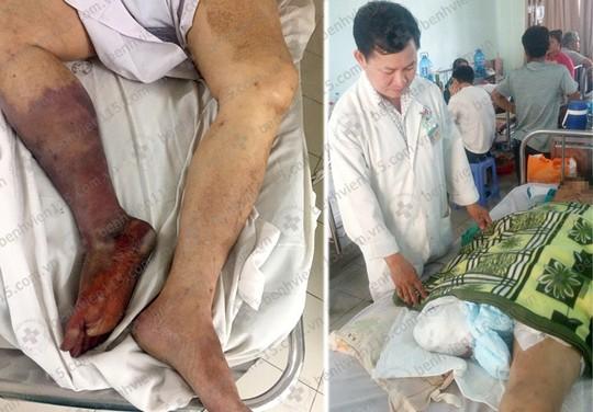 Bị cắt cụt chân do uống thuốc không đều - ảnh 1