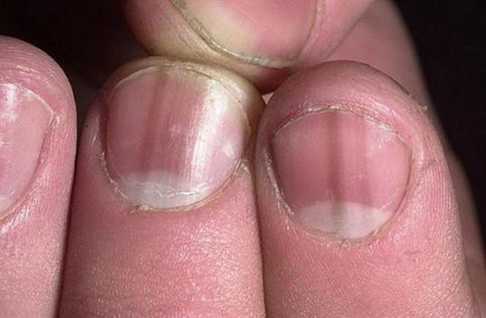 Nhìn móng tay, biết ngay bạn mắc bệnh gì - Ảnh 1.
