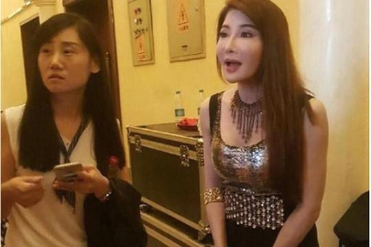 Nữ hiệp màn ảnh Đài Loan bị dè bỉu vì phẫu thuật - Ảnh 5.