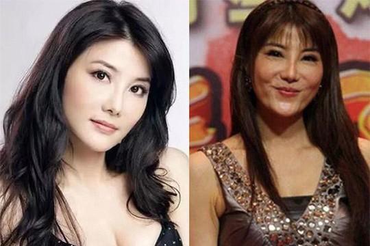 Nữ hiệp màn ảnh Đài Loan bị dè bỉu vì phẫu thuật - Ảnh 6.