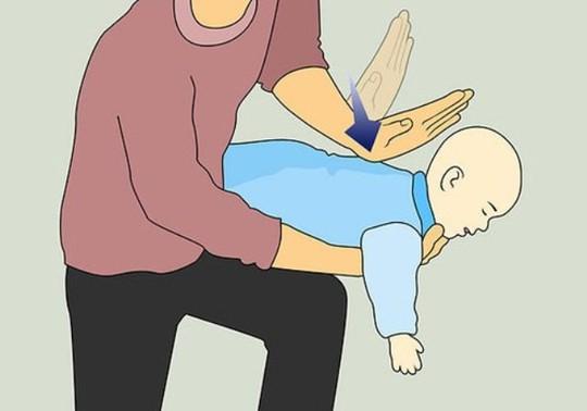 Bác sĩ chỉ cách sơ cứu khi trẻ bị hóc dị vật - Ảnh 1.