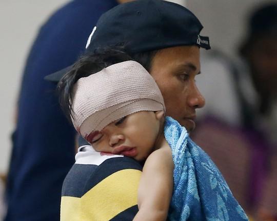 Philippines: Hạn chế đốt pháo nhưng vẫn gần 200 người bị thương - Ảnh 1.