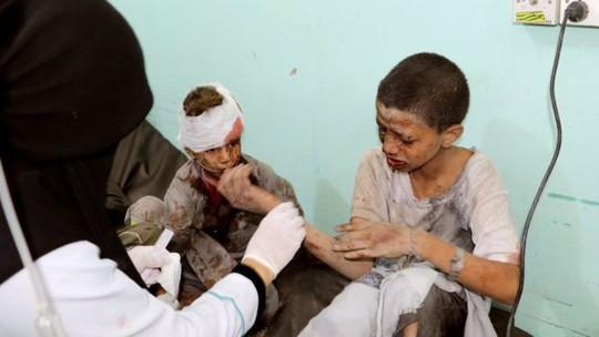 Xe buýt dính đòn thù, 29 trẻ em thiệt mạng - Ảnh 1.