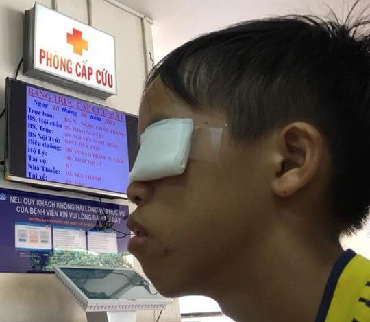Dùng thuốc đầu que diêm làm pháo, bé trai bị hỏng mắt - Ảnh 1.