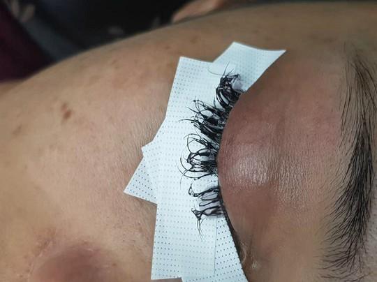 Cô gái Thái Lan suýt hỏng mắt vì nối mi bằng keo dán sắt - Ảnh 1.